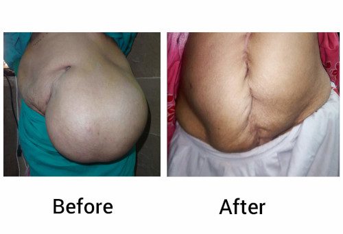 results after performing successful hernia operation on a patient