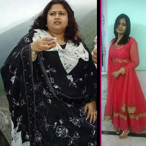 female patient after losing 40kg weight